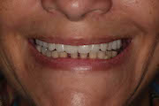 TreatmentPhotos/Dentures1_PostTx.jpg