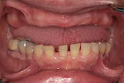 TreatmentPhotos/Dentures1_PreTx1.jpg