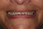 TreatmentPhotos/Dentures1_PreTx2.jpg