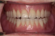 TreatmentPhotos/Dentures2_PostTx2.jpg