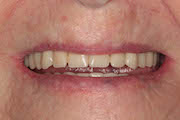 TreatmentPhotos/Dentures2_PreTx1.jpg