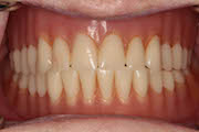 TreatmentPhotos/Dentures2_PreTx2.jpg