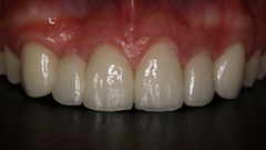 TreatmentPhotos/Veneers_PostTx.jpg