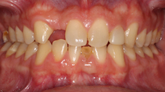 TreatmentPhotos/Veneers_PreTx.jpg
